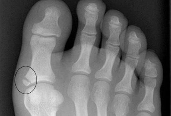 Перелом пальца с осколками