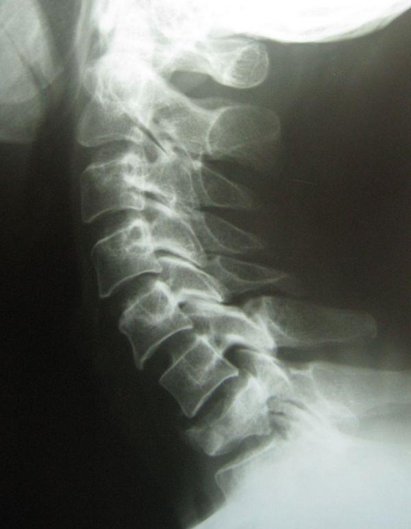 Чаще всего подвергаются переломам поясничный и шейный отделы