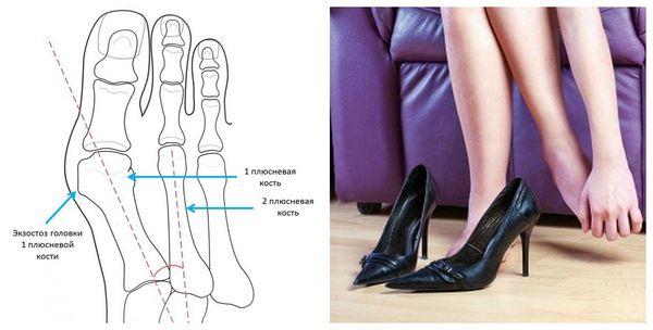 Такая проблема может возникнуть, если человек регулярно носит обувь на высоком каблуке или с узким носком