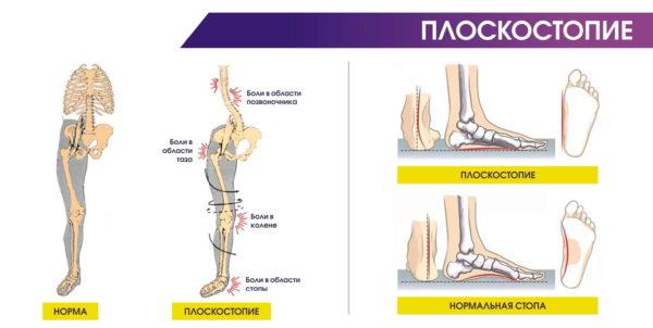 Плоскостопие может стать причиной развития коксартроза
