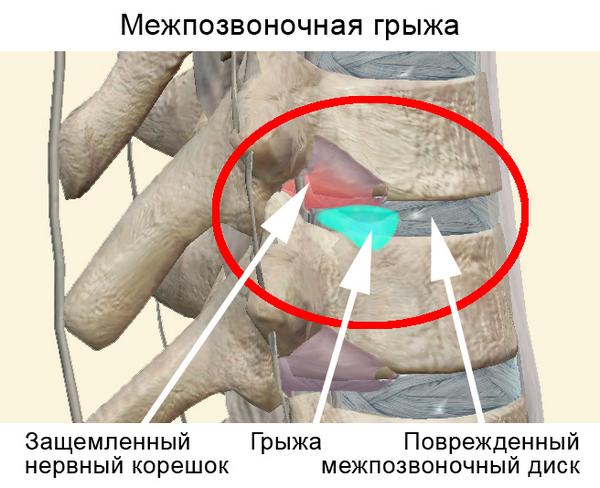 Межпозвоночная грыжа может вызвать воспаление седалищного нерва
