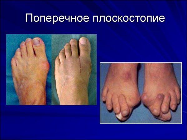 Особо «шишка» на ноге возле большого пальца выделяется при поперечном плоскостопии