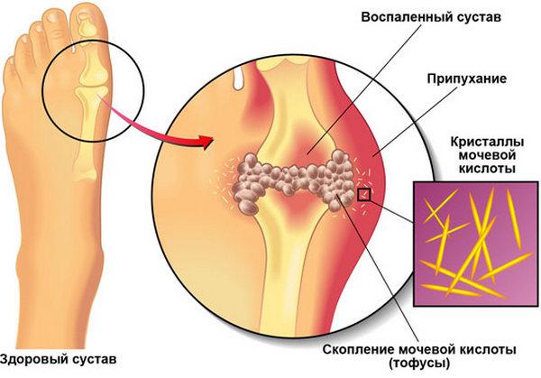 Важно дифференцировать вальгусную деформацию стопы и подагру