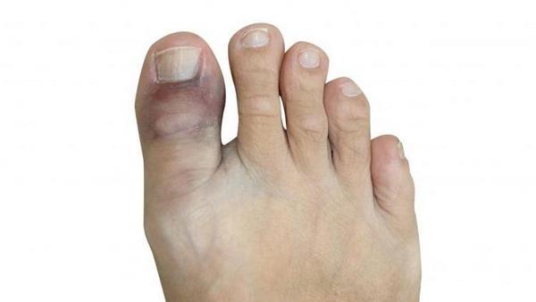 При переломе пальца на ноге наблюдается отек, гематома
