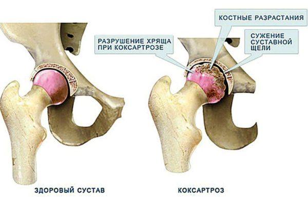 Выделяют несколько степеней коксартроза