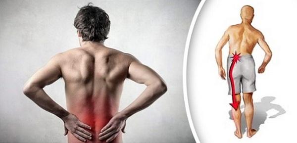 Основной симптом защемления седалищного нерва – резкая боль в пояснице и ногах