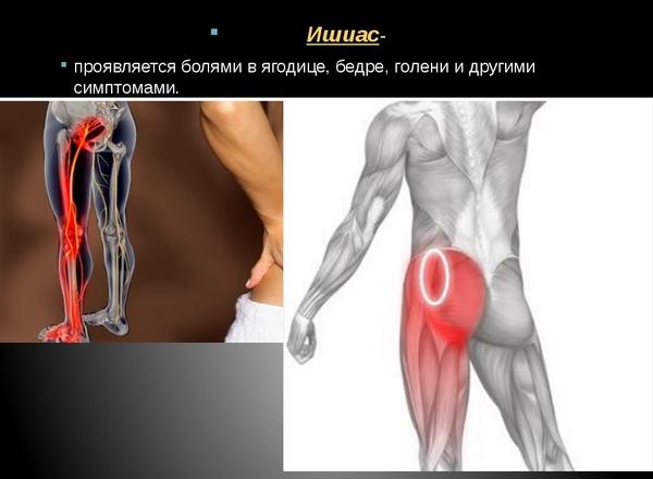 Судороги икроножных мышц могут возникать при ишиасе