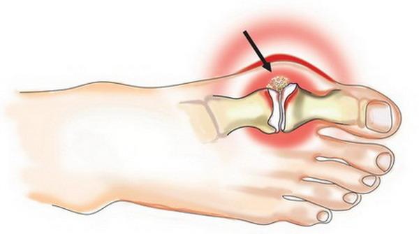 Вальгусная деформация большого пальца возникает из-за увеличения угла между первым и вторым пальцами ноги