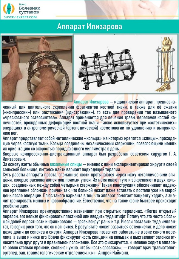 Об аппарате Илизарова