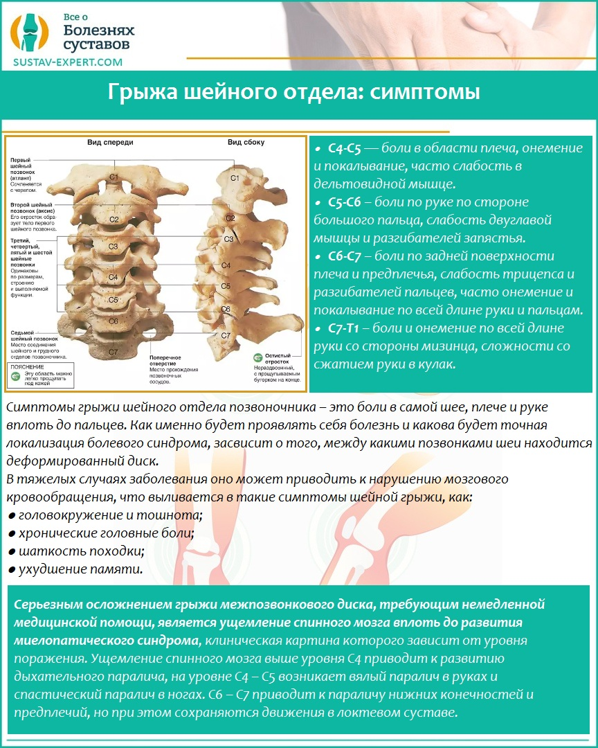 Грыжа шейного отдела: симптомы