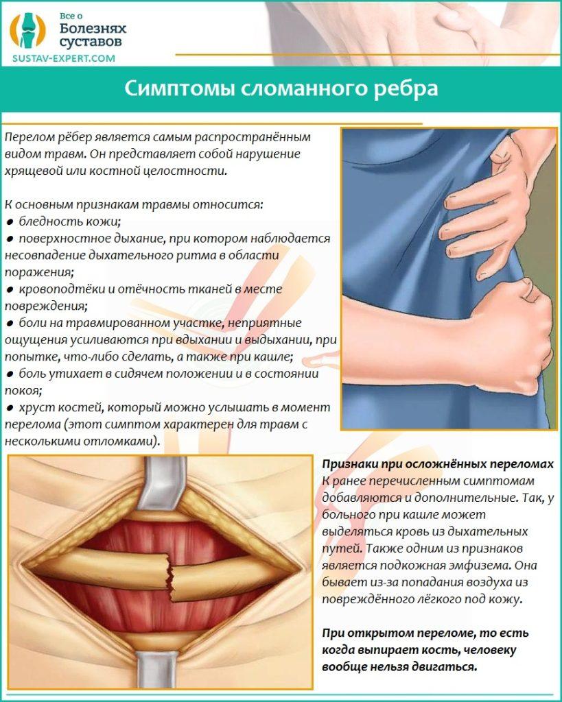 Симптомы сломанного ребра