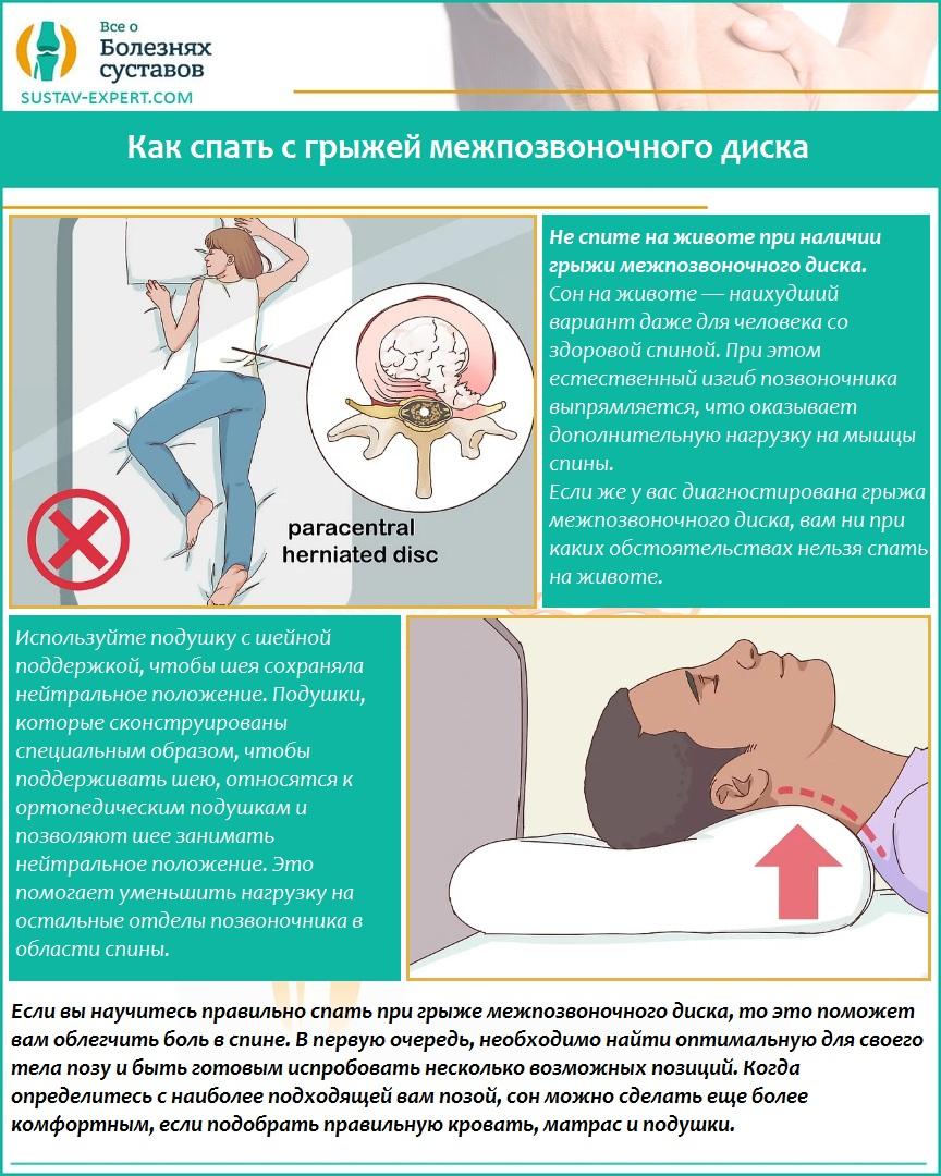 Как спать с грыжей межпозвоночного диска