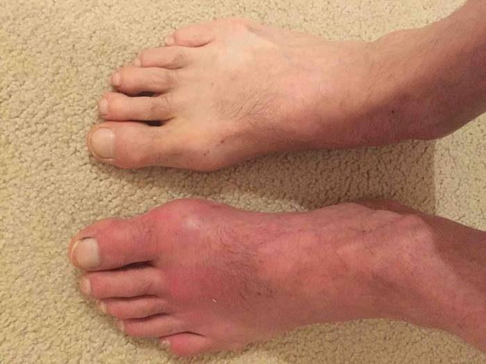 Ноги больного подагрой