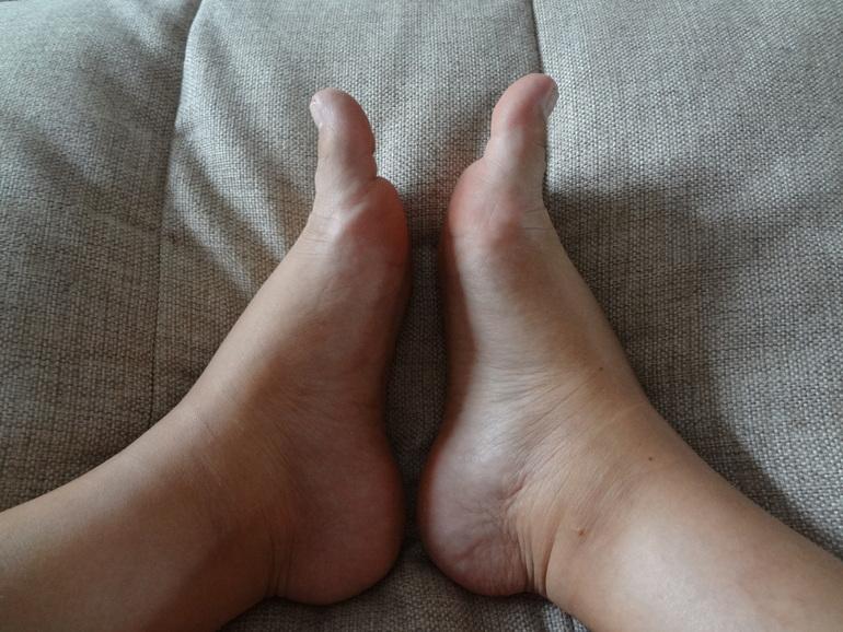 Отек щиколоток и голени причины thumbnail