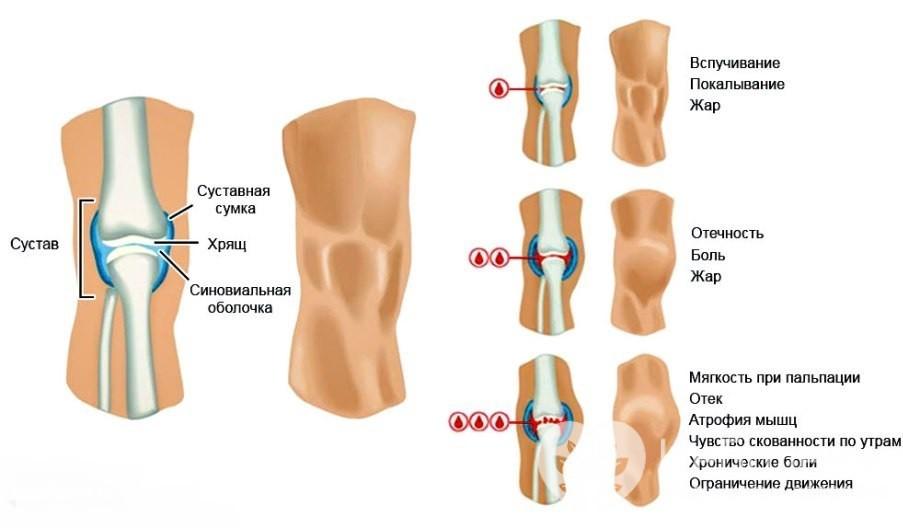 Признаки гемартроза коленного сустава
