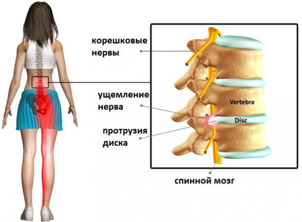 При протрузии возникают болевые ощущения с иррадацией в бедра, онемение, ослабление нижних конечностей