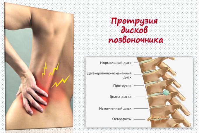 Протрузия диска и боли в позвоночнике