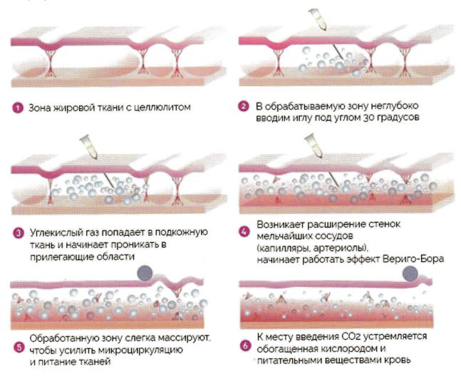 Углекислый газ, который используется при карбокситерапии, совершенно безвреден