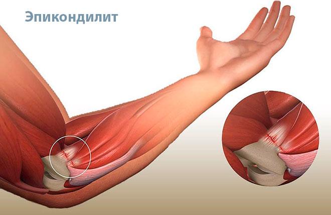 Воспаление сухожилий мышц вокруг локтя вызывает тендинит (другое название – эпикондилит). Он может быть наружным и внутренним