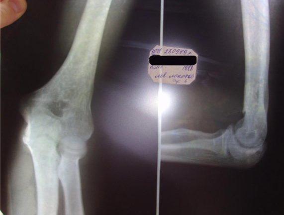 Рентген локтевого сустава