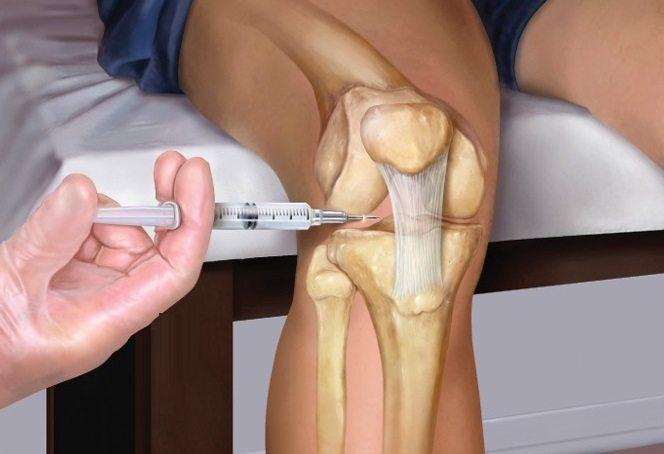 Уколы в коленный сустав при артрозе: препараты