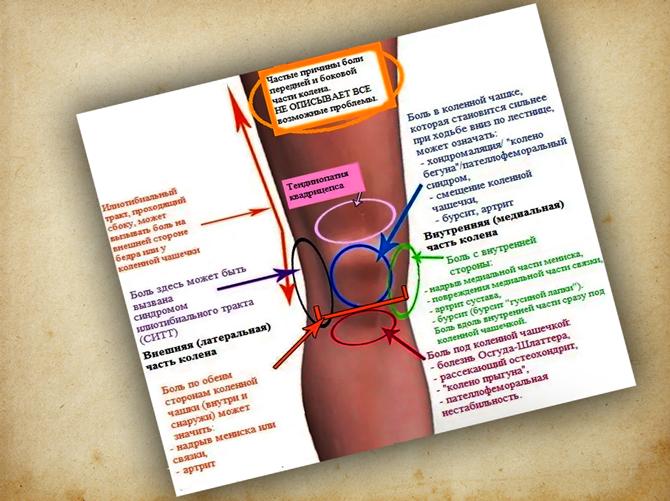 Классификация болезней по боли в колене
