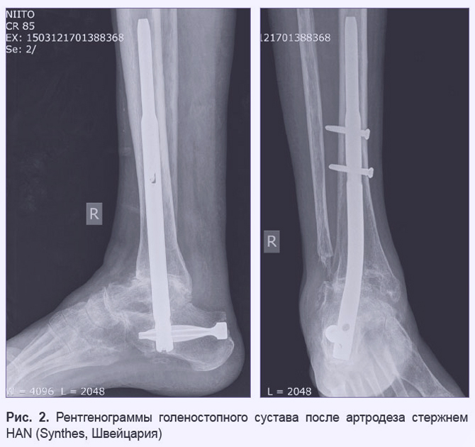 Рентген голеностопа