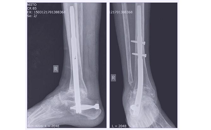 Снимок голеностопного сустава