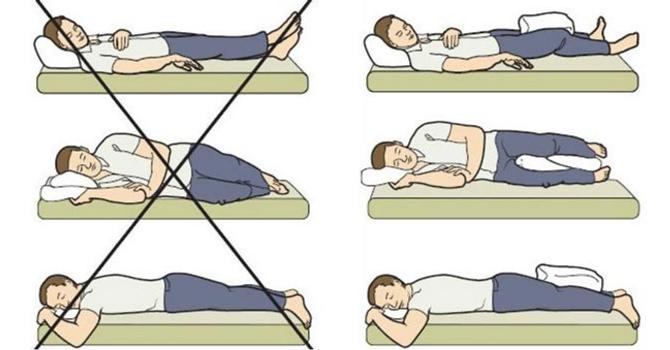 Позы для сна после эндопротезирования