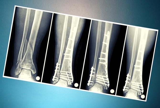 Рентген перелома костей голени