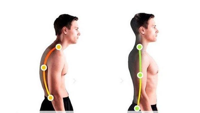 Сутулость спины