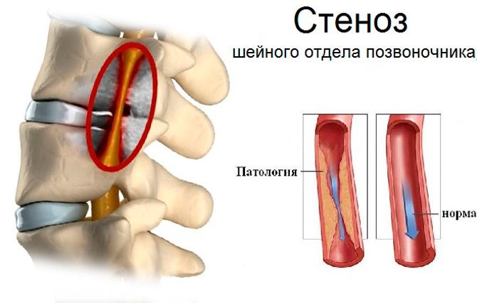 Стеноз шейного отдела