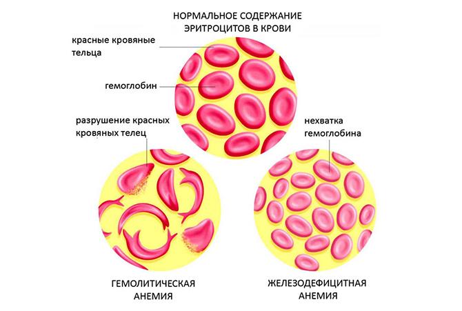 Содержание эритроцитов