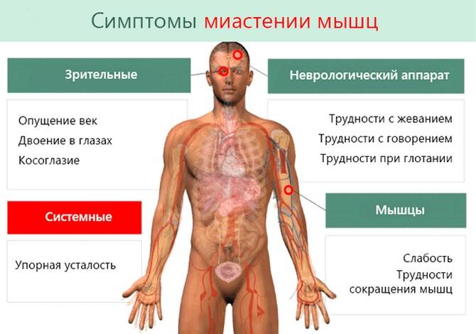 Симптомы миастении