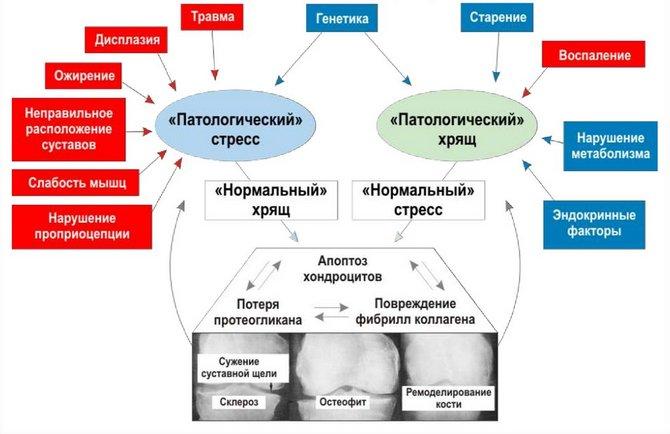 Патогенез артроза
