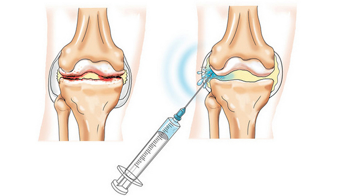Пункция суставов