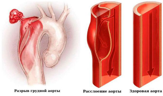 Болят ребра с двух сторон спереди и со спины