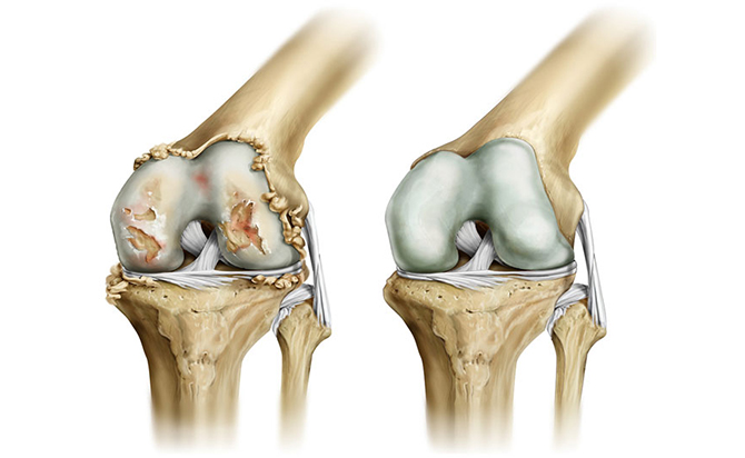 Гонартроз коленного сустава человека