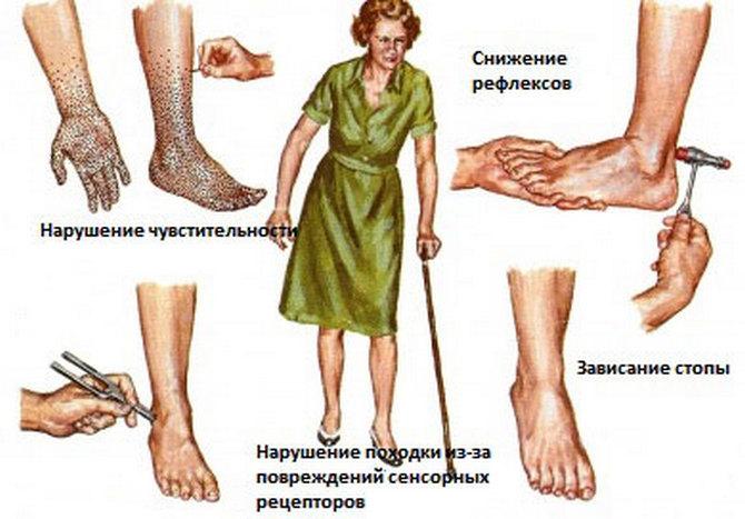 Полинейропатия