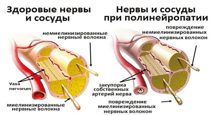 Сосуды и нервы при полинейропатии