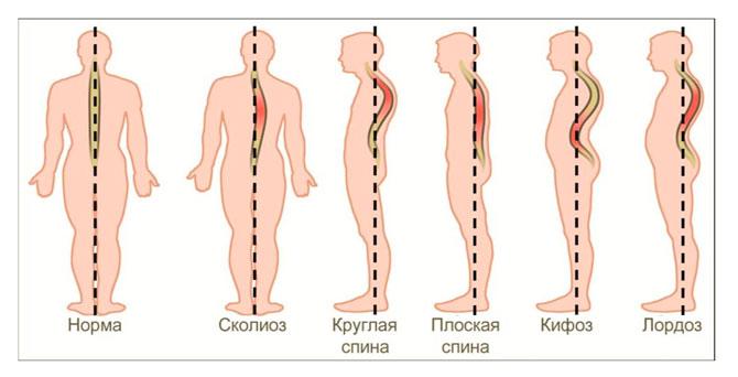 Деформация спины