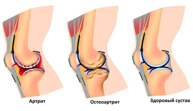 Хруст при заболеваниях коленного сустава