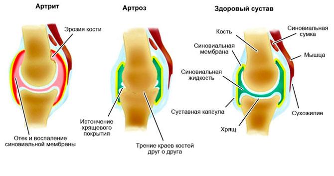 Сравнение изменений при разных патологиях