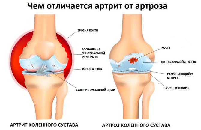 Чем отличит артроз от артрита