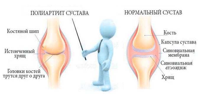 Полиартрит и нормальный сустав