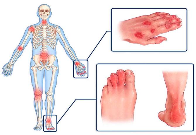 Псориатический полиартрит у человека