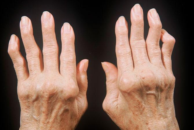 Ревматоидный полиартрит у человека