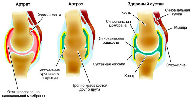 Артроз (остеоартроз, гонартроз)