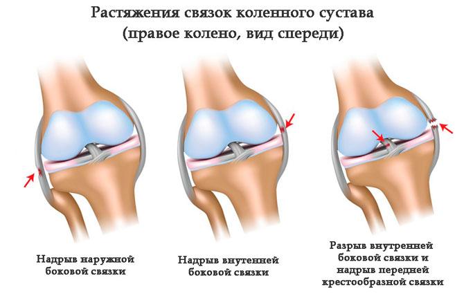 Повреждение коленных связок