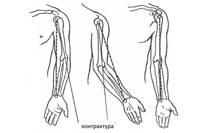 Мышечные контрактуры